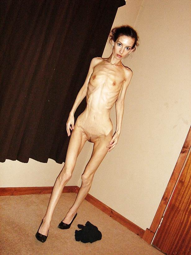 Naked anorexic chicks
